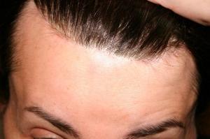 Hairline, December 7, 2008